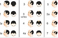 scale of male-pattern baldness