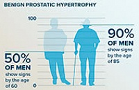 Prostatic Hypertrophy In Men