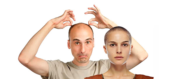 balding man and woman