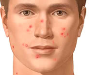 Everything You Need To Know About Acne
