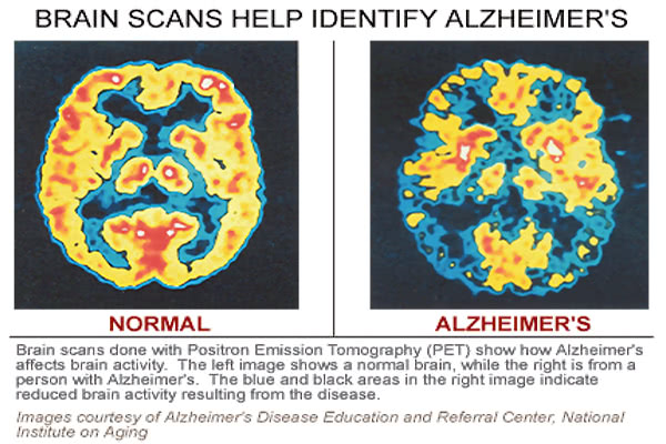 alzheimers brain scan
