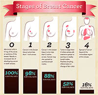 Stages Breast Cancer