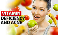 Vitamin Deficiency Cause Acne